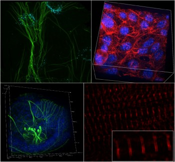 Clockwise, from top left: keratinocytes deforming protein nanosheets on top of an oil droplet (Gautrot lab), fibroblasts forming a network in a hydrogel (S.Lopategui, Iskratsch lab), cardiomyocytes contracting soft polymers (with titin doublets resolved at approximately 160nm distance, I.Xanthis, Iskratsch lab) and flat worm larvaes (A.Carrillo-Baltodano, Martin lab, SBCS), all imaged with the Nikon SoRa super-resolution spinning disc microscope