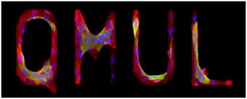 QMUL micro-patterned skin stem cells. This logo of patterned stem cells was generated using state-of-the-art surface micro-patterning available at QMUL.